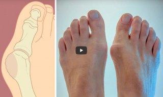 Твердая косточка на большом пальце ноги фото причины лечение