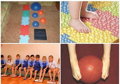 ЛФК при вальгусной деформации у детей