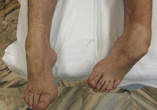 Деформация голеностопного и тазобедренного суставов