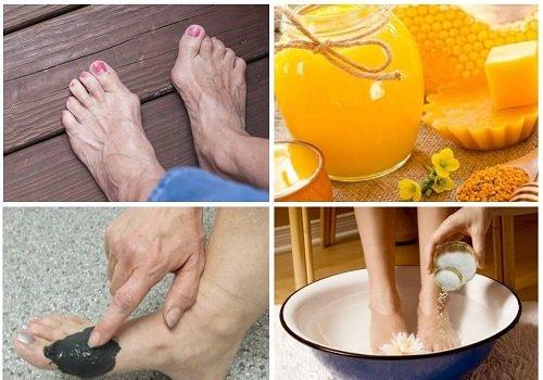 народные средства для лечения косточки на ноге