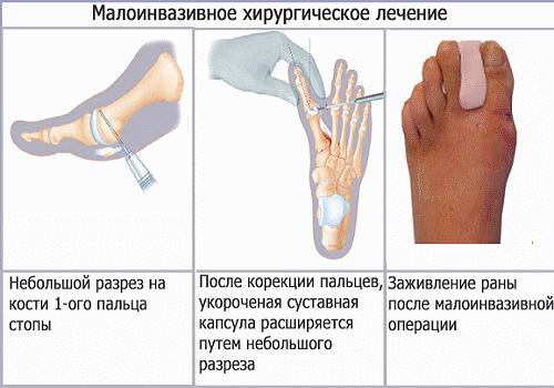 малоинвазивное хирургическое лечение