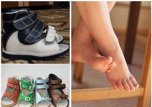 обувь для выправления ног