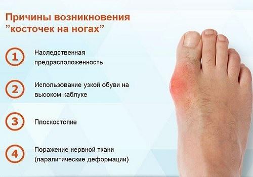 Причины возникновения косточек на ногах