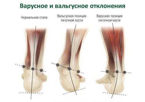 Вальгусная и варусная деформация стопы