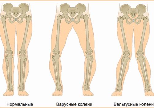 Виды постановки ног